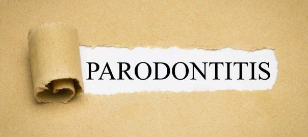 Alzheimer durch Parodontitis gefördert